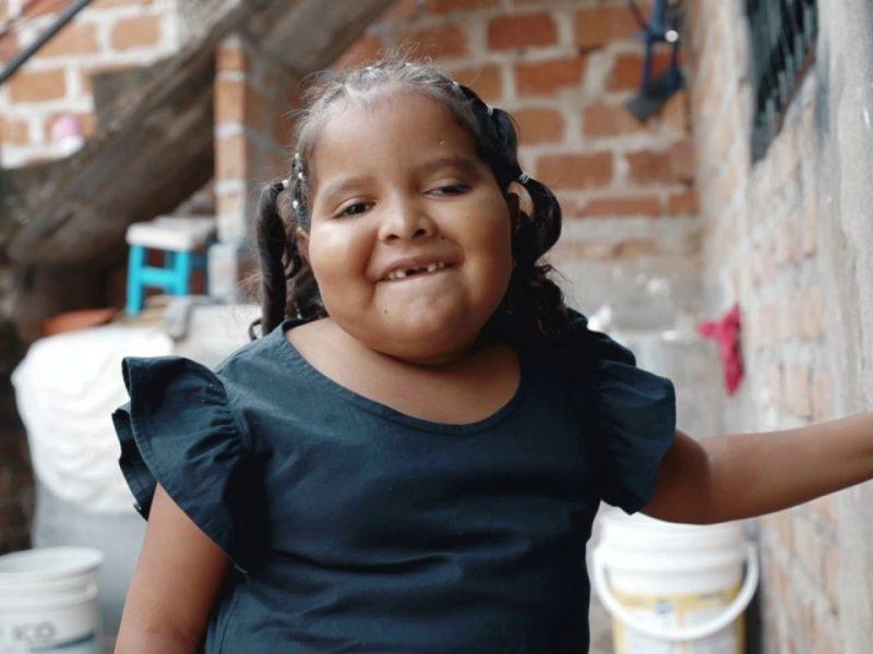 Laura Valentina, paciente oncológica, 6 años, tres cirugías (BQ)